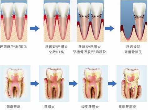 牙周病导致牙齿脱落怎么办_北京圣贝口腔连锁医疗机构